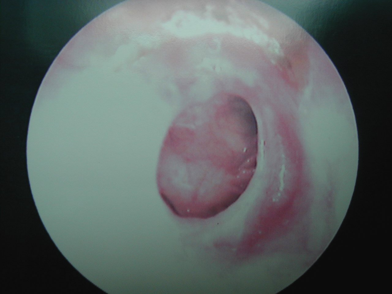 The gallery for --> Otoscope View Normal
